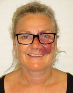 Anne Birgitte Dahl